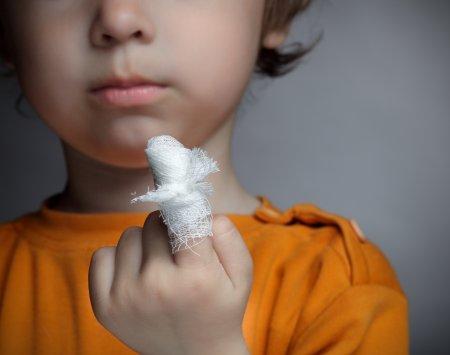 Как правильно лечить небольшую рану у детей, чтобы не было грубого рубца