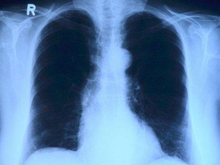 Губернатор: В Петербурге резко возросло количество внебольничных пневмоний