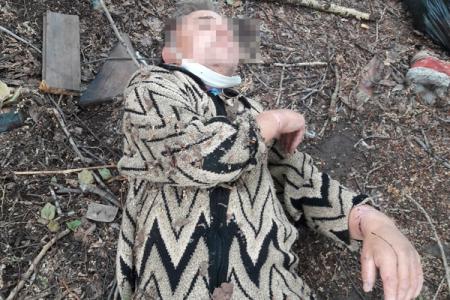 Скорая помощь выбросила окровавленного россиянина впамперсе угаражей