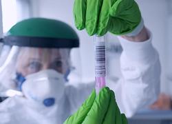 Эксперты назвали арбидол препаратом номер один против коронавируса
